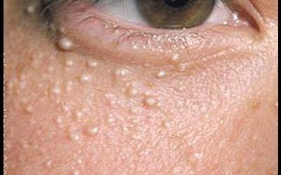 Cum să scapi de punctele albe de grăsime, sau colesterol, de pe față